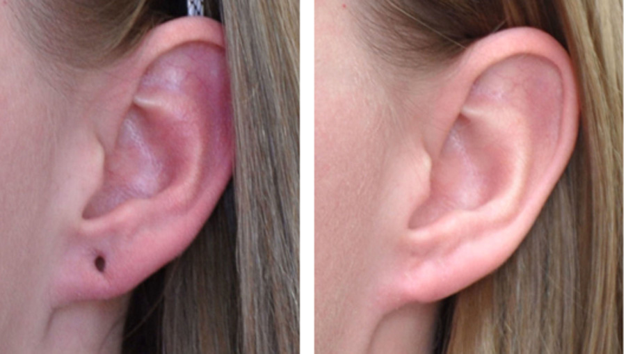 earlobe_combo_1